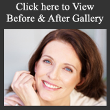 Dr. James Namnoum's Before & After cosmetic Photo Gallery