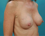 pre tissue expander breast surgery