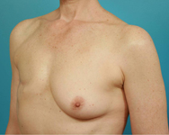 dr namnoum breast reconstruction patient