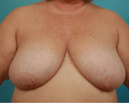 namnoum breast recon patient