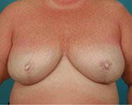 post surgery for breast reconstruction with implant and expander