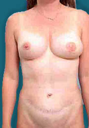 Unilateral TRAM Flap Breast Reconstruction