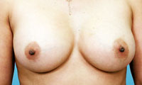 Atlanta Breast Augmentation