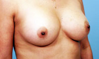 Dr. Joseph Williams Breast Augmentation photo