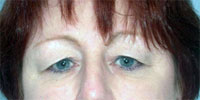 eyelid surgery blepharoplasty