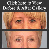 Dr. Fernando Burstein's Before & After Reconstructive Surgery Photo Gallery