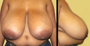 pre breast augmentation