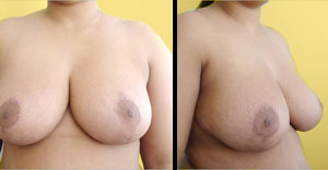 post breast reduction