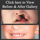 Dr. Fernando Burstein's Before & After Cosmetic Surgery Photo Gallery