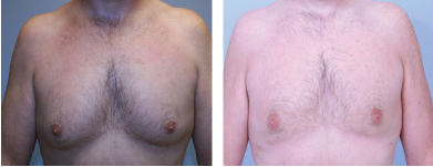 male breast reduction atlanta