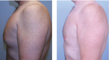 alpharetta male breast reduction surgery