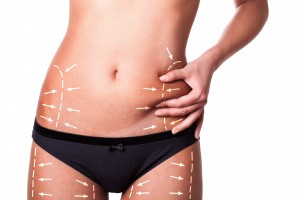 Liposuction (small)