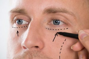 Frequently Asked Questions about Male Facial Plastic Surgery