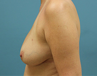 Bilateral TRAM Flap Breast Recon