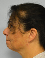 Before & After Facelift Photos