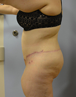"Before & After Body Contouring ""Belt Lipectomy"" Photos"