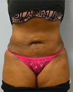 Before & After Mini Abdominoplasty Photos