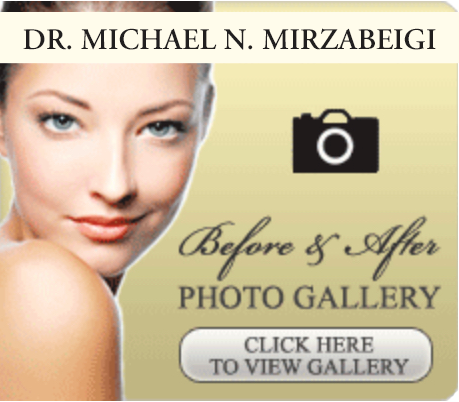 Dr. Mirzabeigi, plastic surgery photo gallery