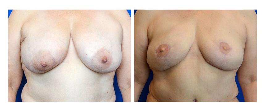 DIEP Free Flap Breast Reconstruction
