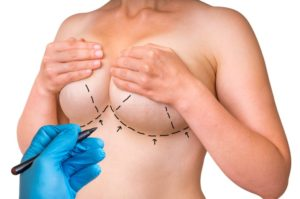 Frequently Asked Questions about Breast Lifts