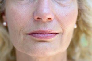 facial plastic surgery, fat transfer, facial fillers, facial rejuvenation, double chin